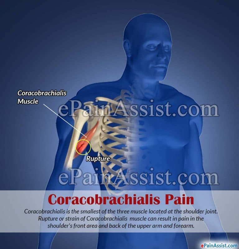 Coracobrachialis Exercises & Treatments to Bounce Back from Shoulder Injury